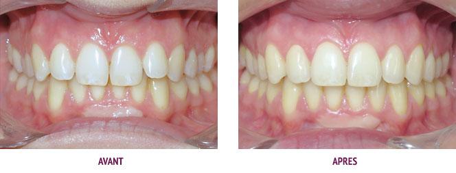 Traitement Orthodontie Cas Avant Apres
